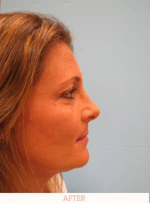 After Rhinoplasty - Dr. Carlos L. Wolf