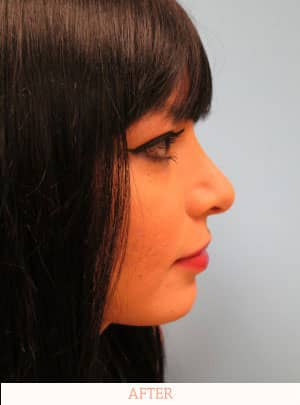 After Rhinoplasty image - Dr. Carlos L. Wolf