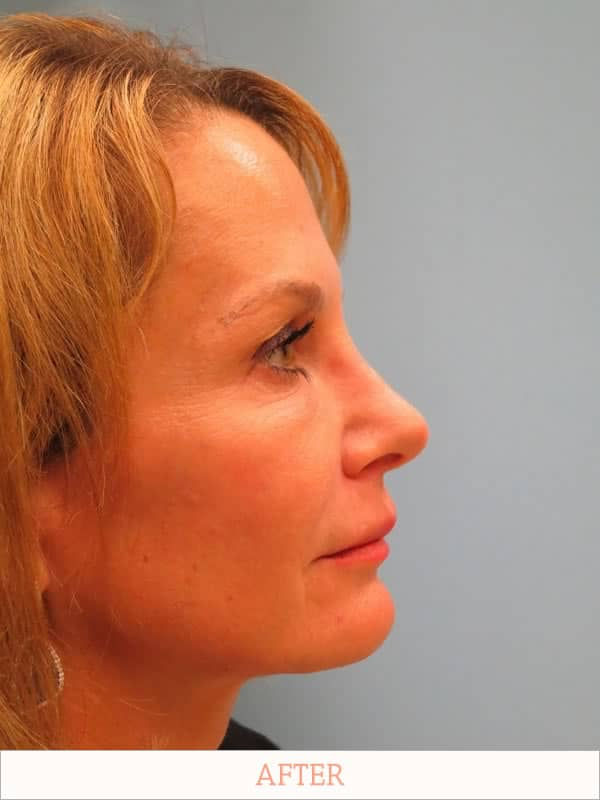 After: Rhinoplasty Recovery - Dr. Carlos Wolf