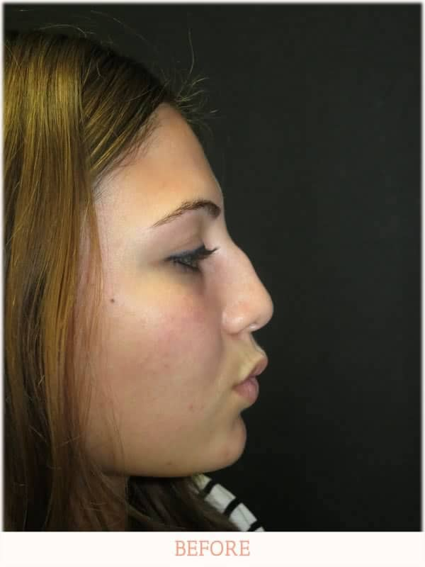 Before - Revision Rhinoplasty - Dr. Carlos Wolf
