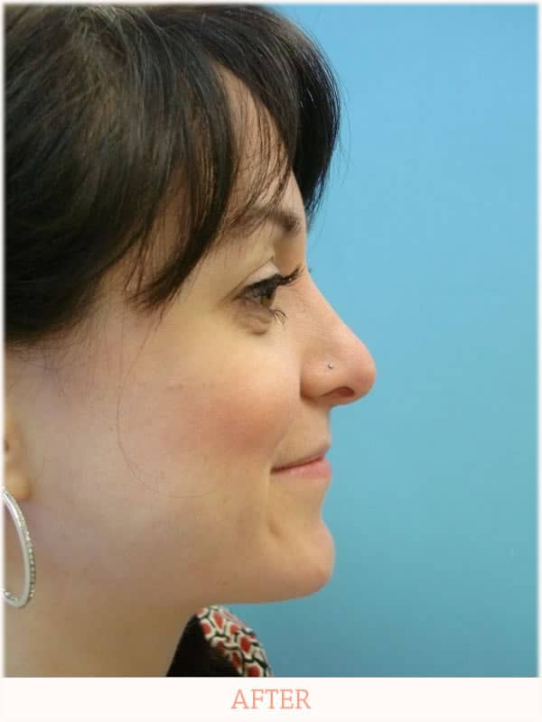 After Nose Plastic Surgery - Dr. Carlos L. Wolf