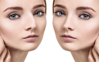 Miami Nose Plastic Surgery